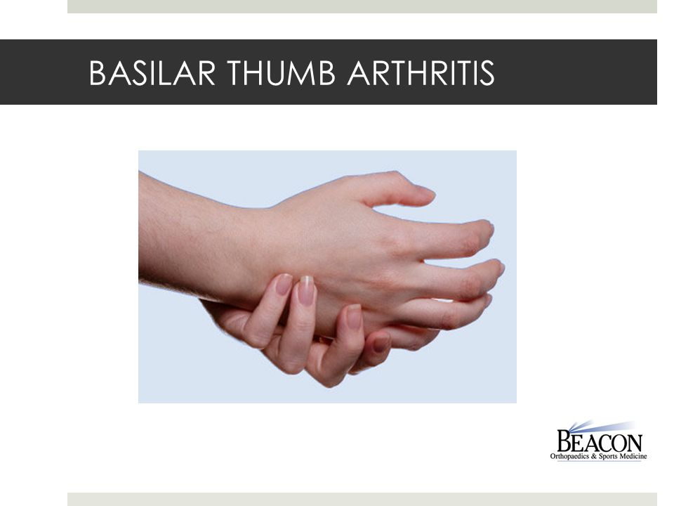 how to find thumb artritid