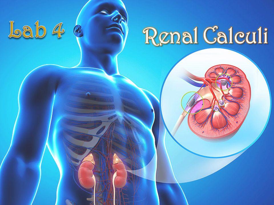 lab 4 renal calculi. - ppt video online download, Skeleton