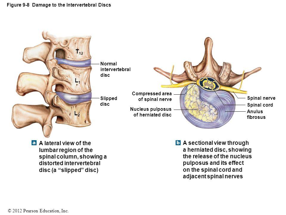 Perfect Intervertebral Discs Mold - Human Anatomy Images ...