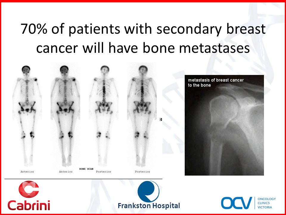 Bone Pain - CancerConnect News : CancerConnect News