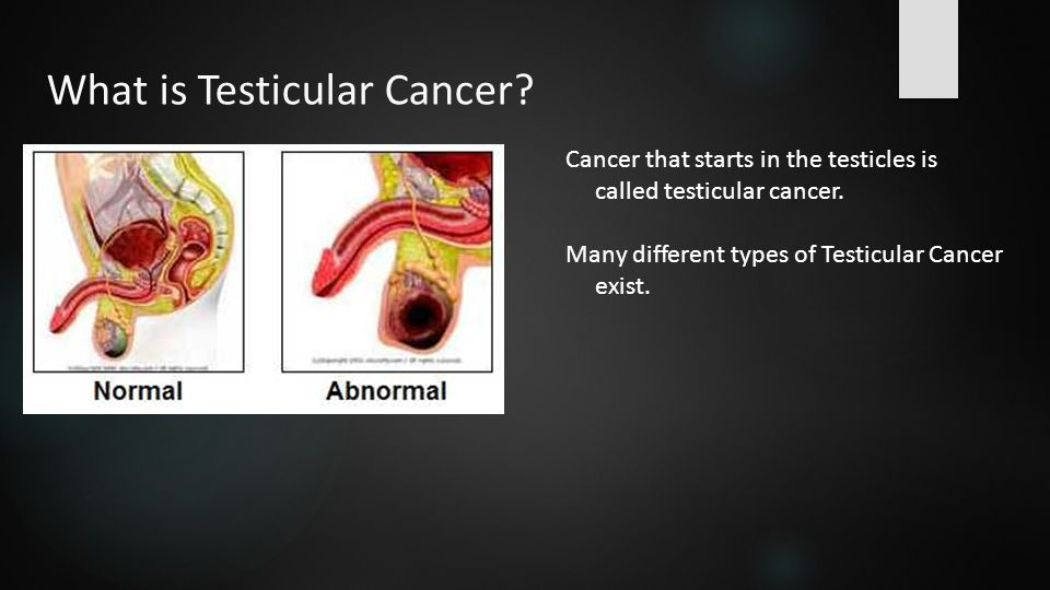 how to get testicular cancer