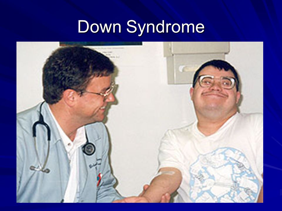an overview of the down syndrome Mouse models of down syndrome have also been used to test therapeutic  strategies here, we provide an overview of research in the last 15years  dedicated to.