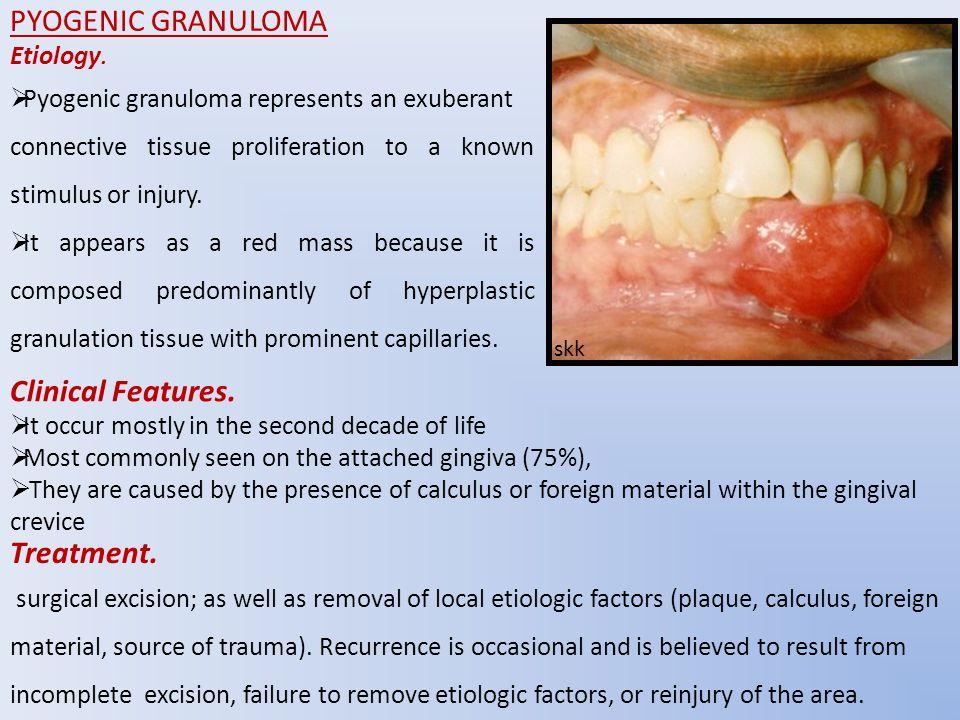 Pyogenic Granuloma Natural Removal