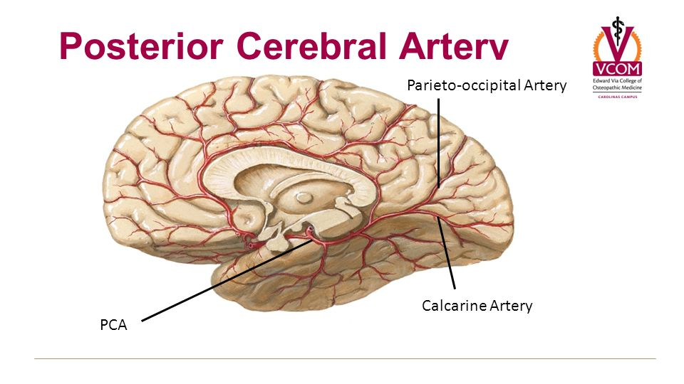 Cerebral stroke