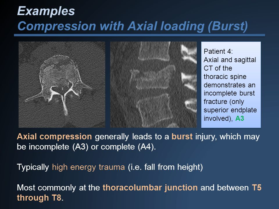 Examples Compression with Axial loading (Burst)