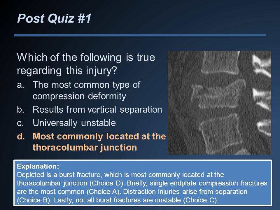 Post Quiz #1 Which of the following is true regarding this injury