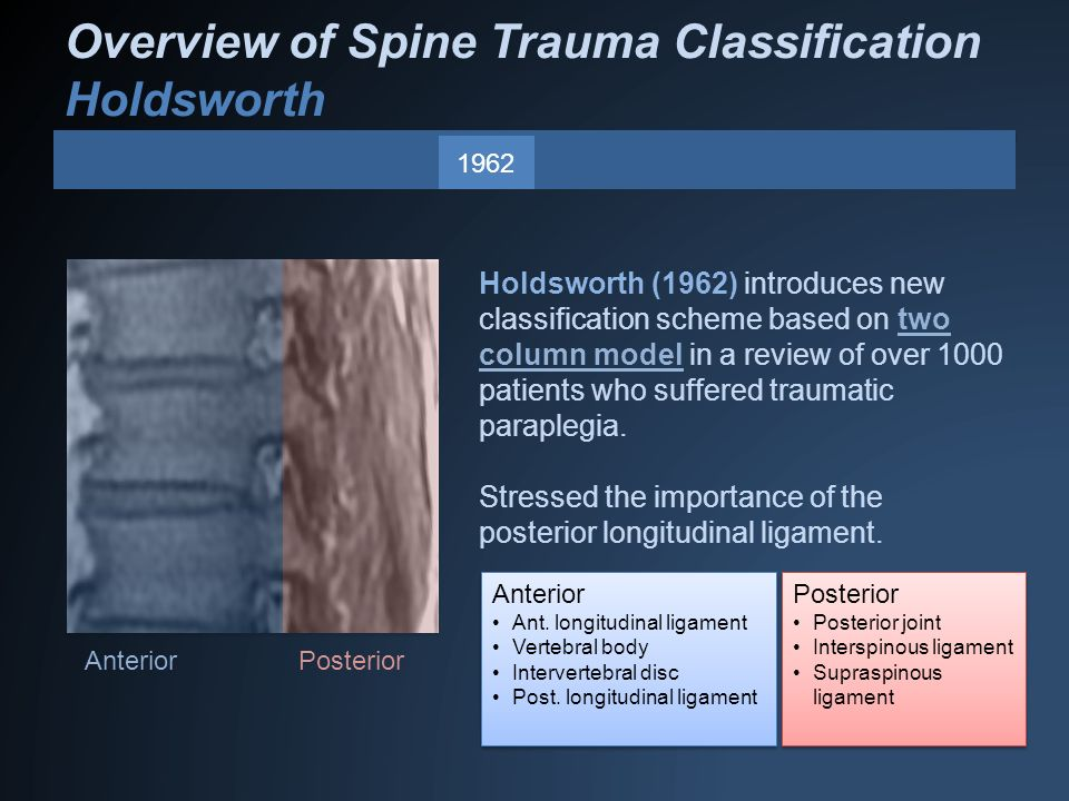 Overview of Spine Trauma Classification Holdsworth