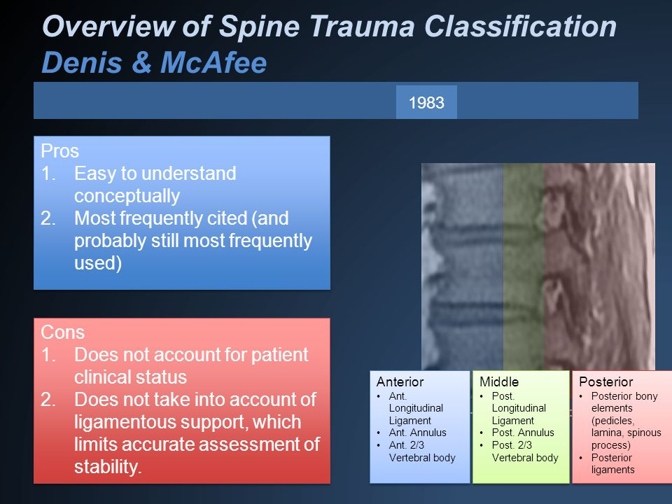Overview of Spine Trauma Classification Denis & McAfee