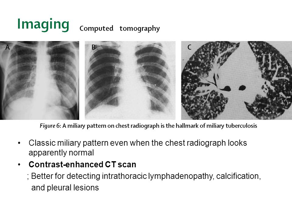 Classic miliary pattern even when the chest radiograph looks apparently normal
