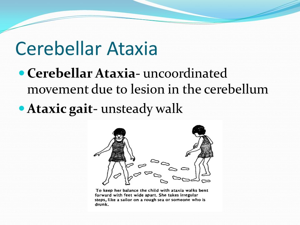 cerebellar ataxia jose s. santiago m.d.. - ppt download, Skeleton