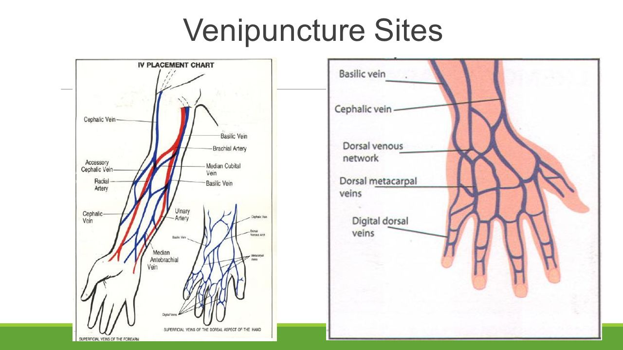 initiating and discontinuing iv infusion - ppt video online download, Cephalic Vein
