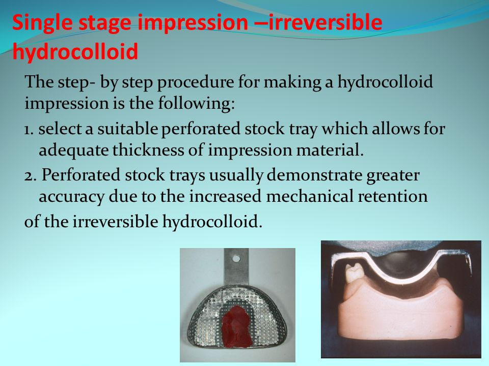 making an impression with irreversible hydrocolloid Irreversible hydrocolloid impression material powder is outlined in table 1 buchan and peggie2 studied the effect of changing the concentration of the different ingredients in irreversible hydrocolloid impression materials by altering the.