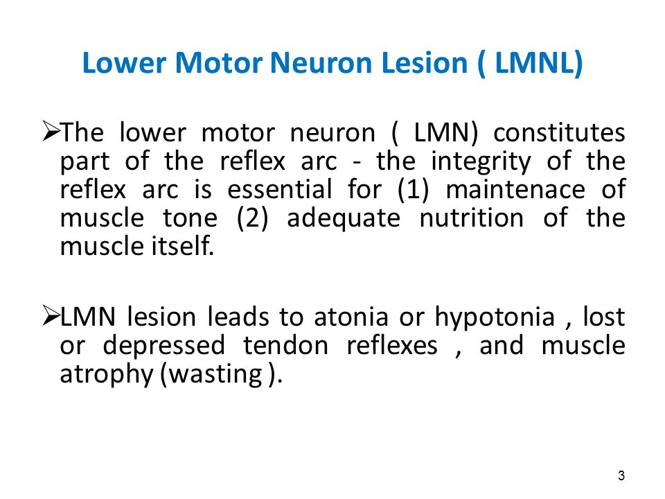 Lecture by dr shaik abdul rahim ppt video online download for Lower motor neuron diseases