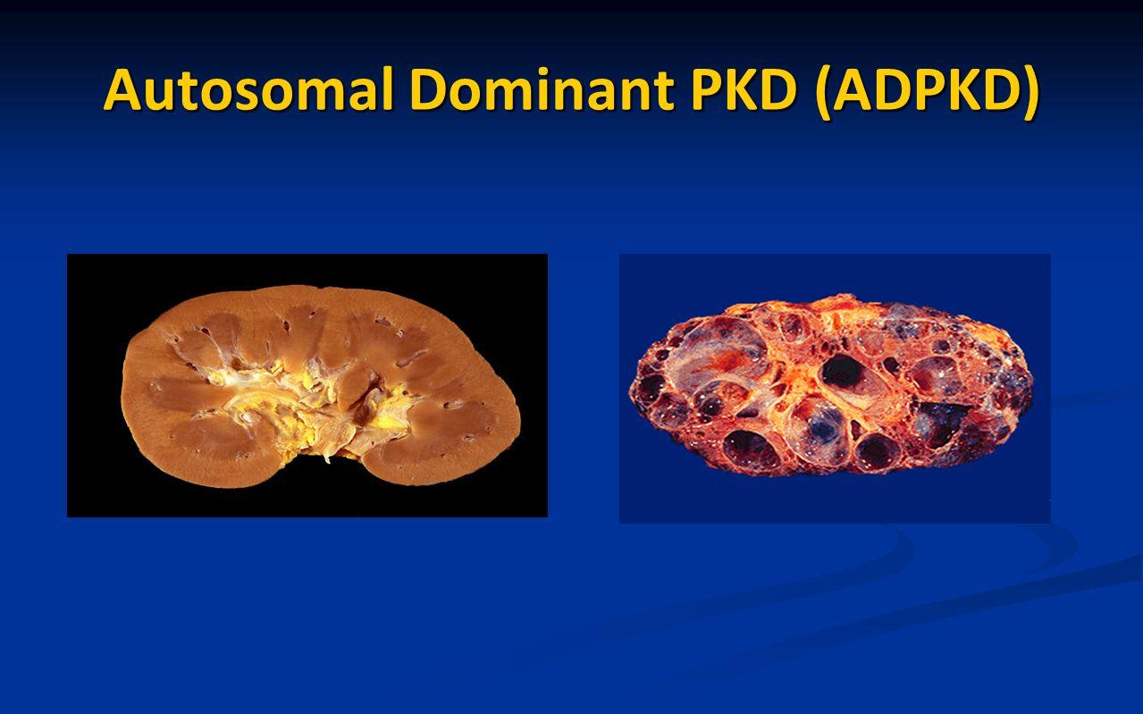 Autosomal Dominant PKD (ADPKD)