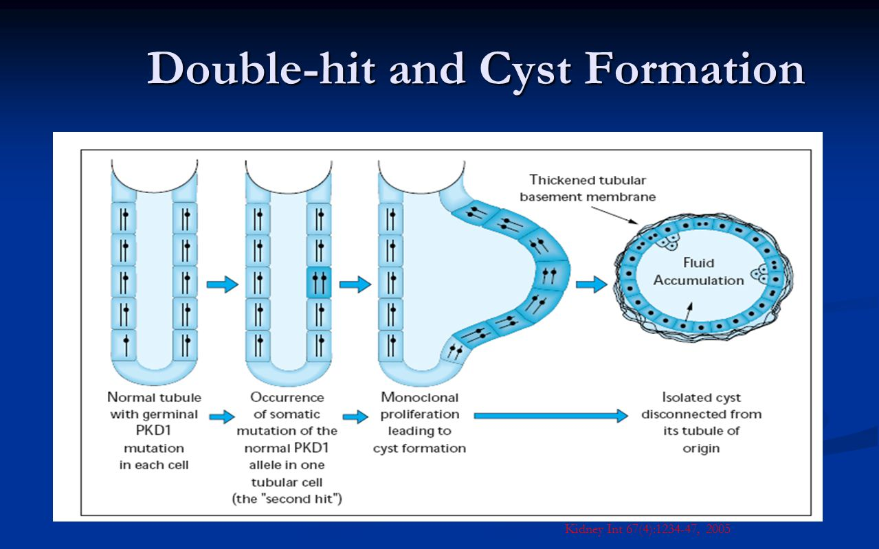 Double-hit and Cyst Formation