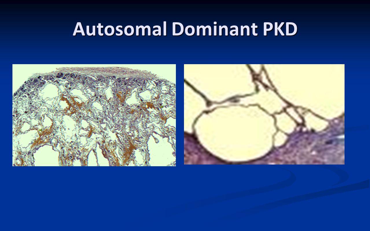 Autosomal Dominant PKD