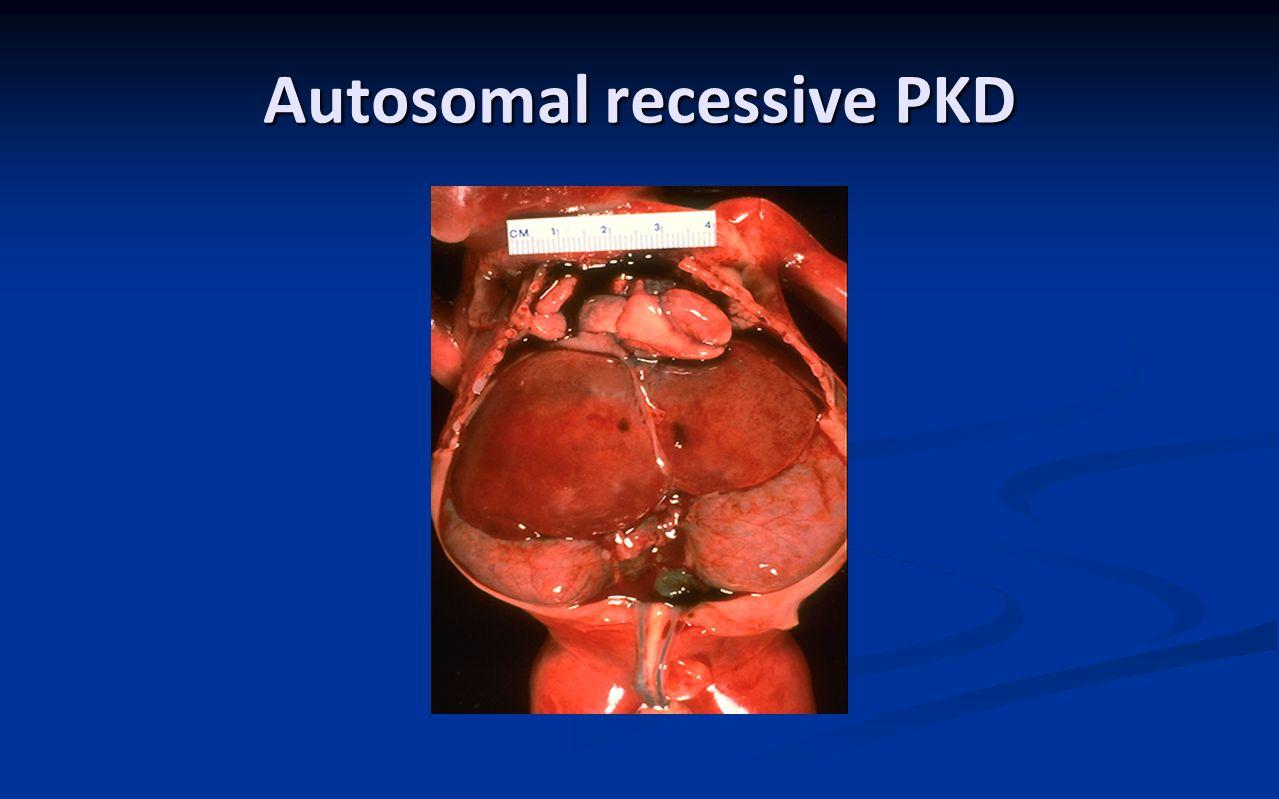 Autosomal recessive PKD