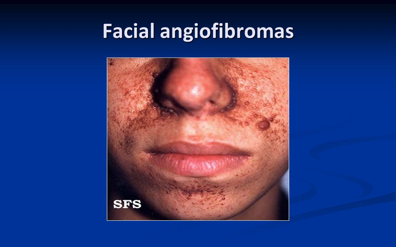 Facial angiofibromas
