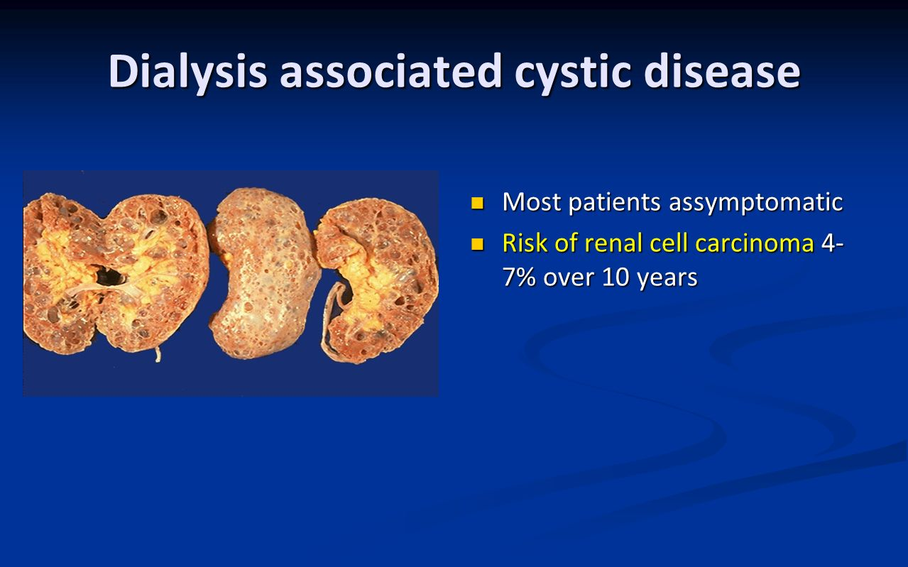 Dialysis associated cystic disease