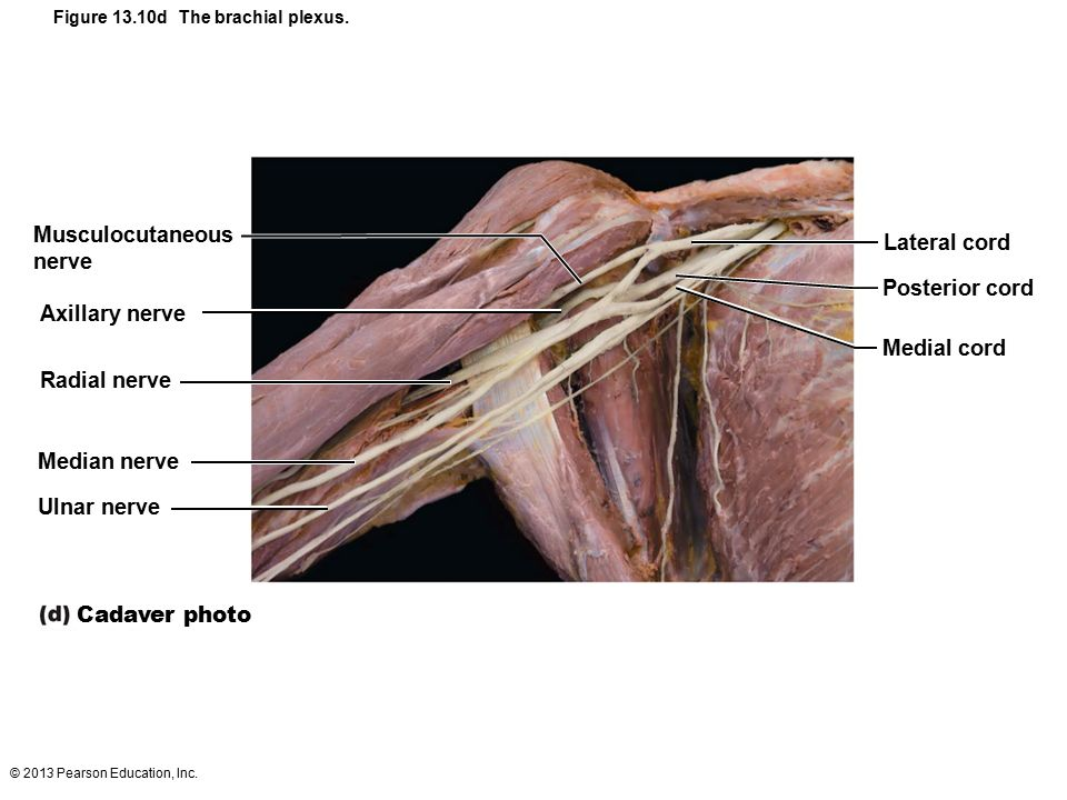 13 The Peripheral Nervous System and Reflex Activity: Part ...