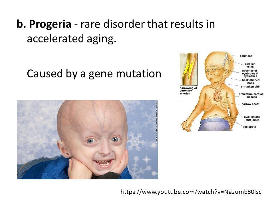 rare aging disease essay