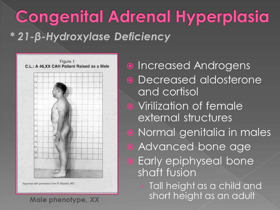 a study on congenial adrenal hyperplasia cah