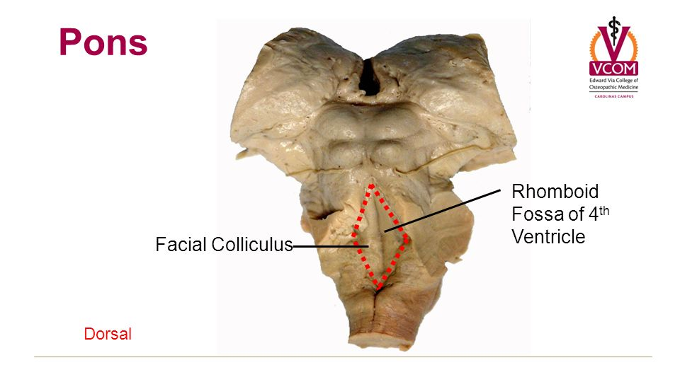 Gross brain and spinal cord block 3 ppt download for Floor of 4th ventricle