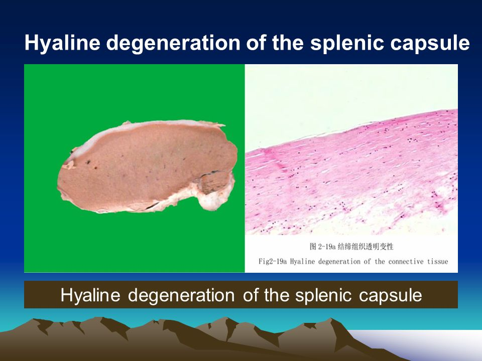 adaptation and injury of cell and tissue ppt video