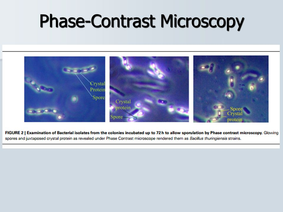 Microscope and Microscopy - ppt download