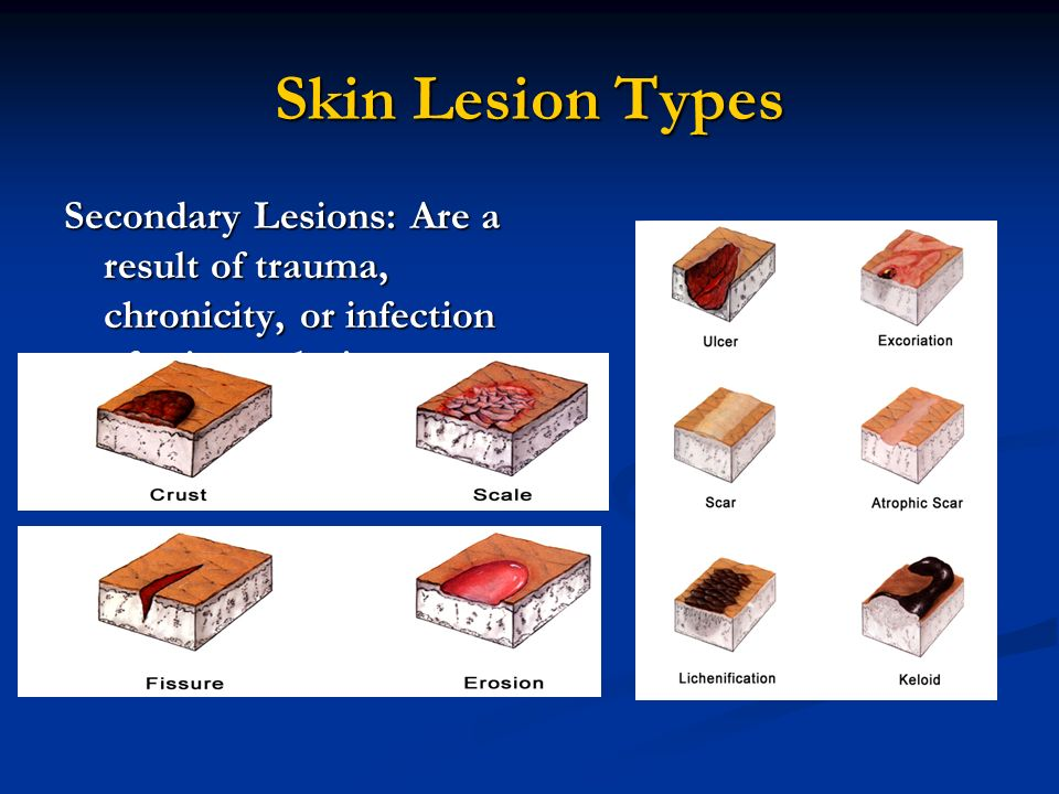 Skin lesions types