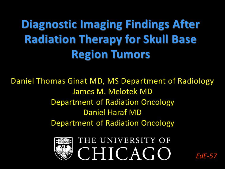 Daniel Thomas Ginat Md Ms Department Of Radiology James M Melotek
