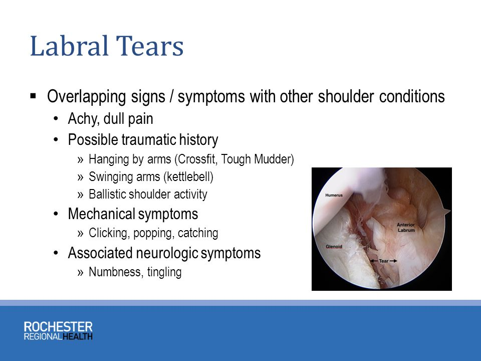Traumatic Shoulder Conditions Ppt Video Online Download
