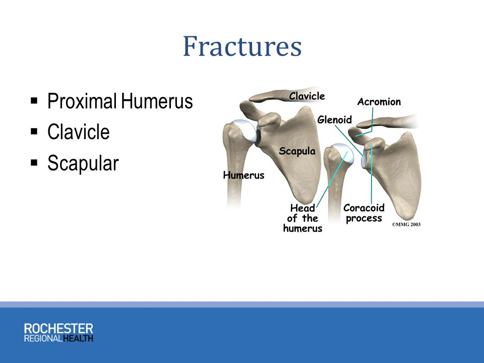 TRAUMATIC SHOULDER CONDITIONS - ppt video online download