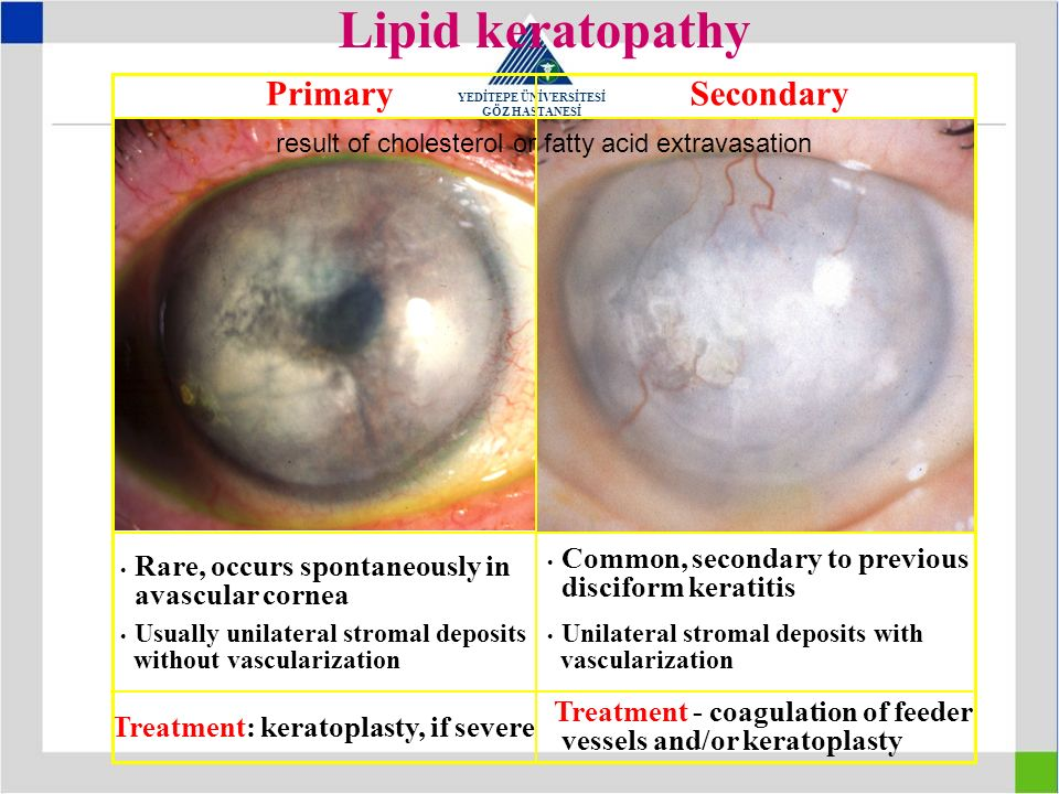 Lipid keratopathy