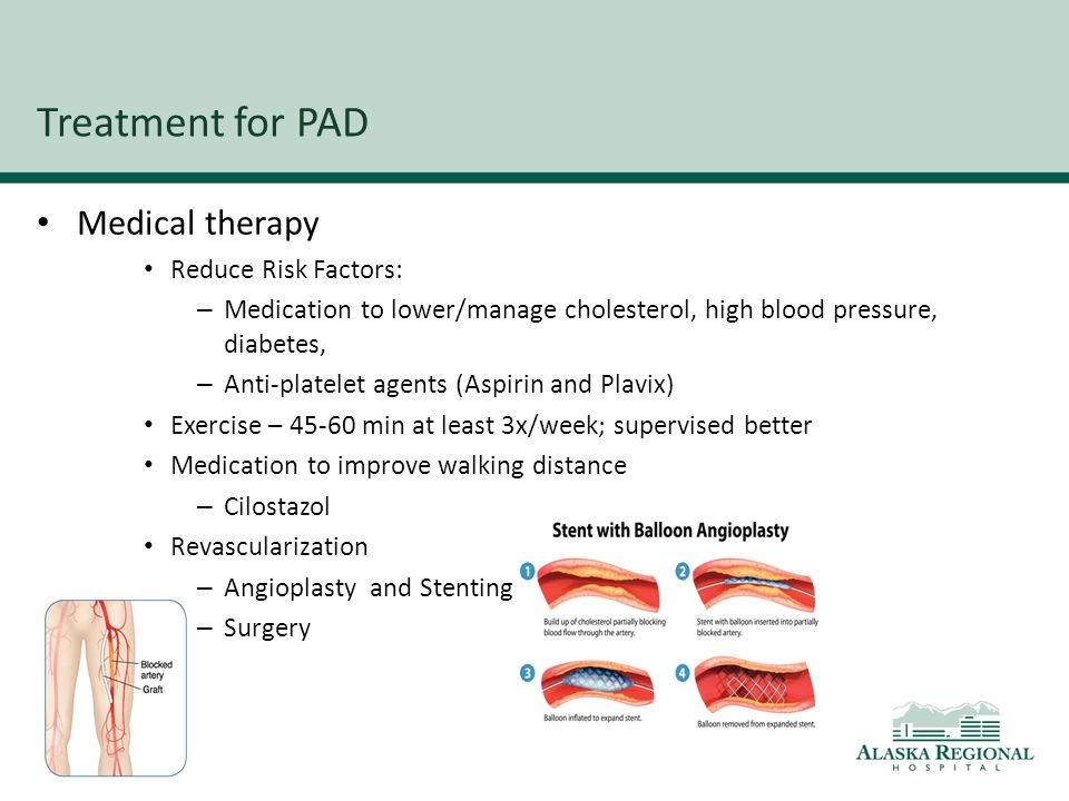 Peripheral Artery Disease Pad Ppt Video Online Download