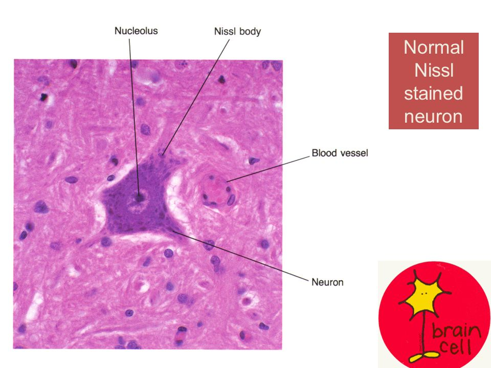 Normal Nissl Stained Neuron Ppt Video Online Download