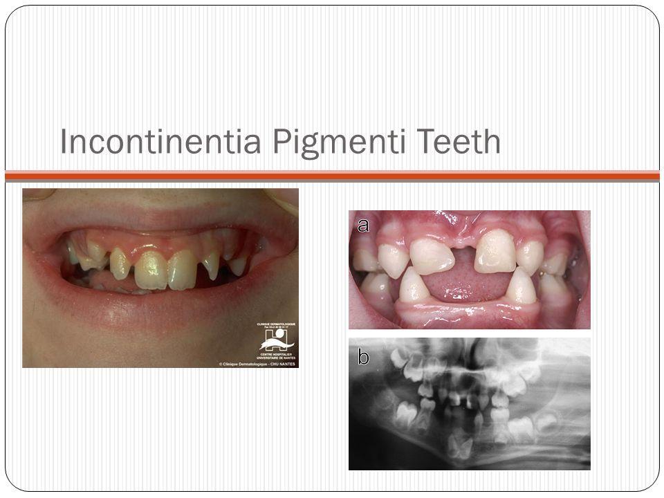 Incontinentia Pigmenti (Bloch-Sulzberger Syndrome)
