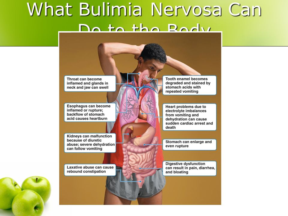 What's to know about bulimia nervosa?