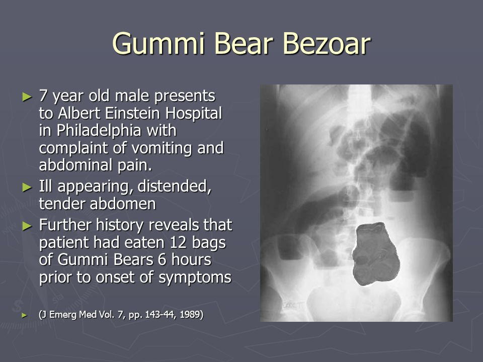 Gummi Bear Bezoar Year Old Male Presents To Albert Einstein Hospital In Philadelphia With Complaint Of Vomiting And Abdominal Pain