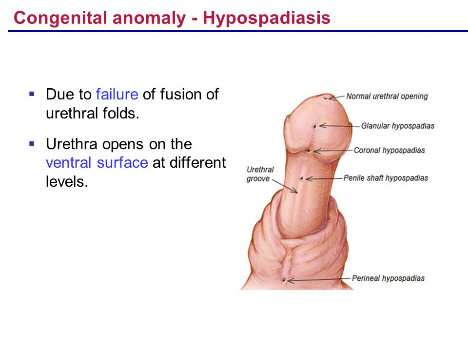 ventral aspect of penis