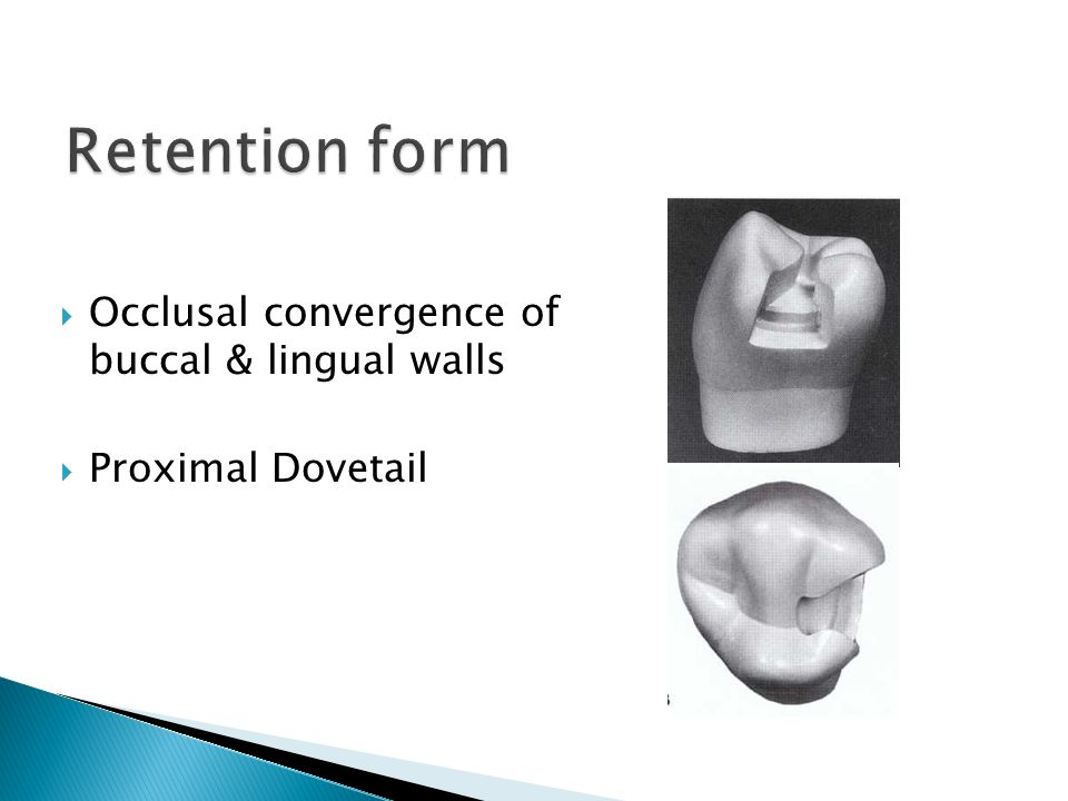 Retention form Occlusal convergence of buccal & lingual walls