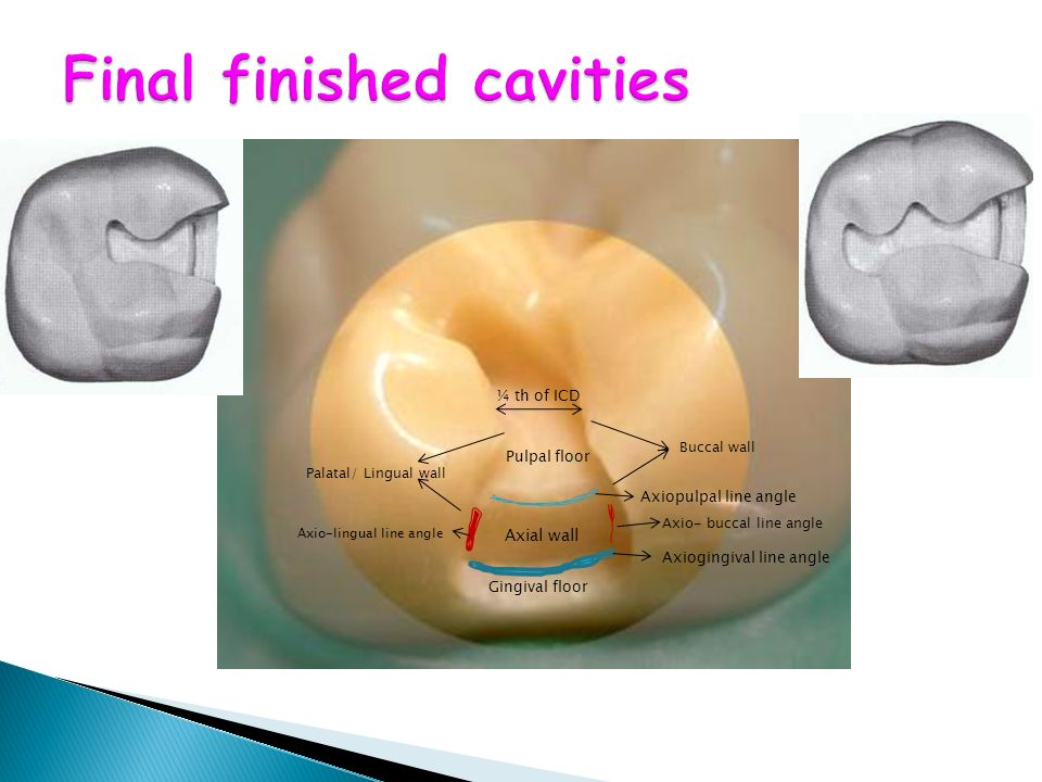 Final finished cavities