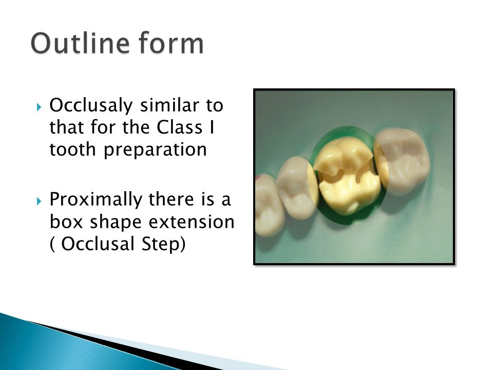 Outline form Occlusaly similar to that for the Class I tooth preparation.