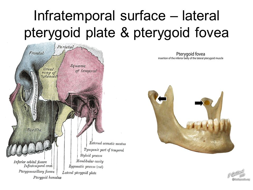 Pterygoid plate