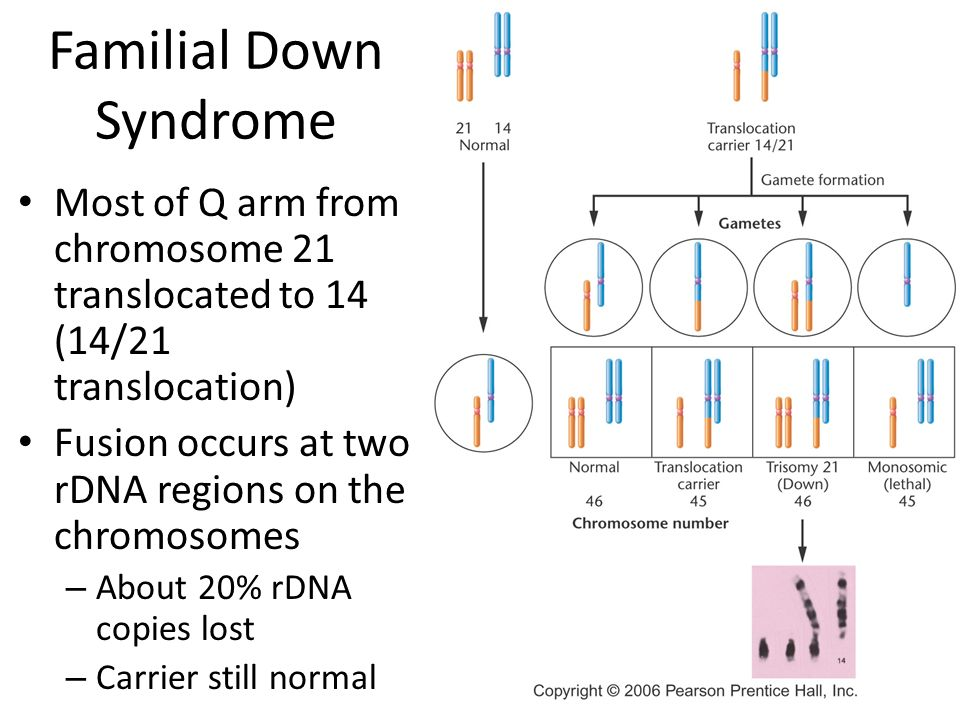 translocated down syndrome essay Down syndrome down syndrome is a congenital disorder arising from a chromosome it comes from a defect involving chromosome 21 the condition leads to impairments in both cognitive ability.