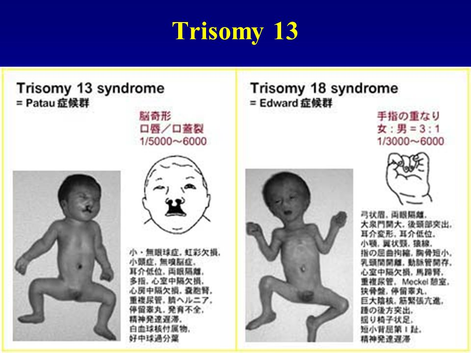 turner syndrome and trisomy 13 18 21 dating
