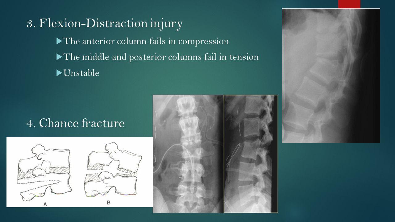 Spinal Injury Sayun Sumethvanich M D Ppt Video Online