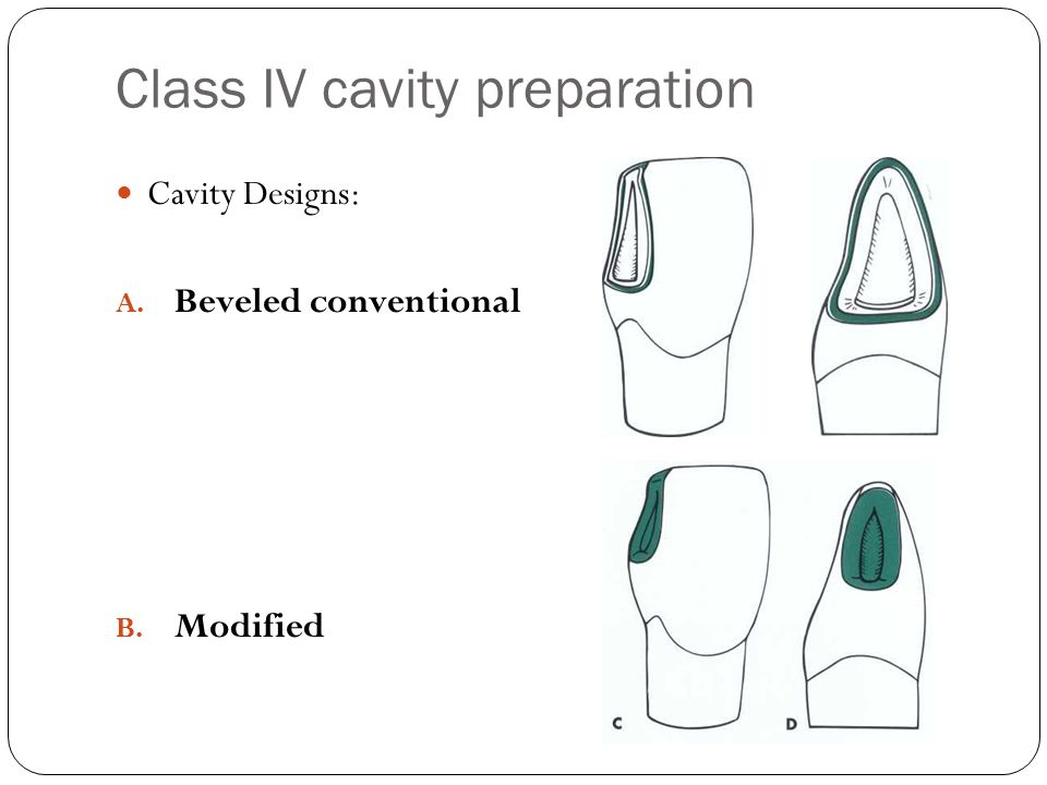 Class IV cavity preparation