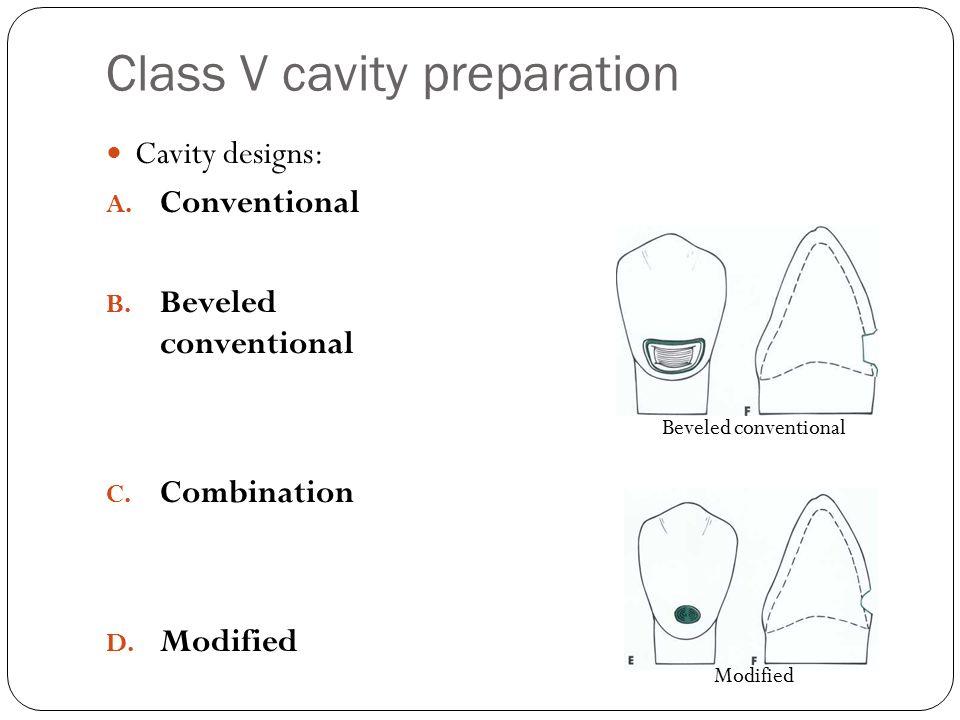 Class V cavity preparation