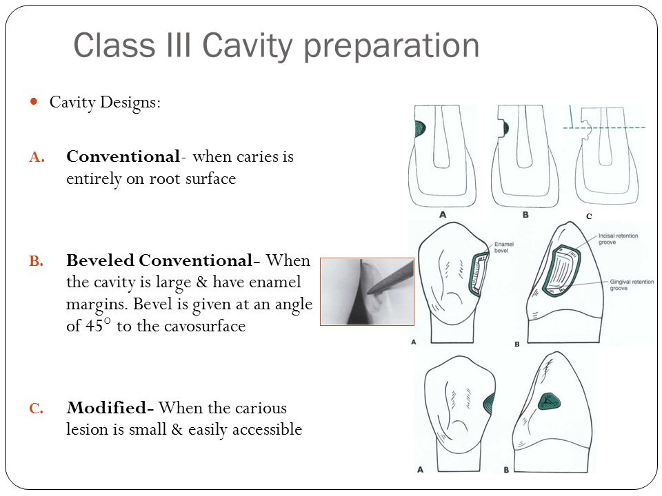 Class III Cavity preparation